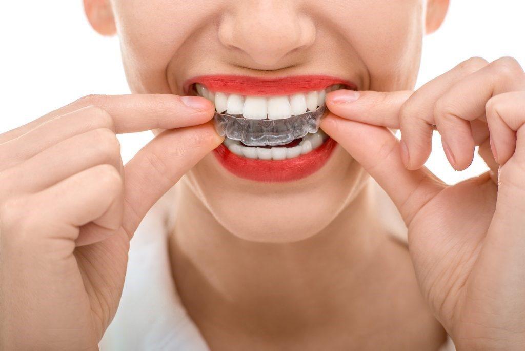 Telsiz Ortodonti (Şeffaf Plaklar)