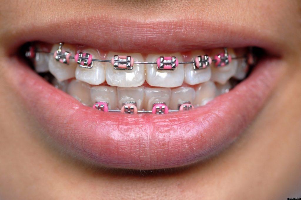 Metal Diş Telleri