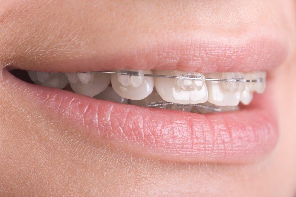 Ortodontik Acil Durumlar
