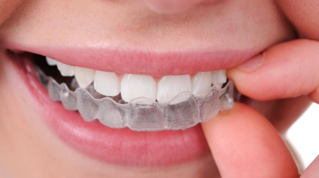 Ortodontist mi, Diş Hekimi mi?