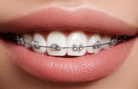 Ortodonti Hakkında Doğru Bilinen Yanlışlar