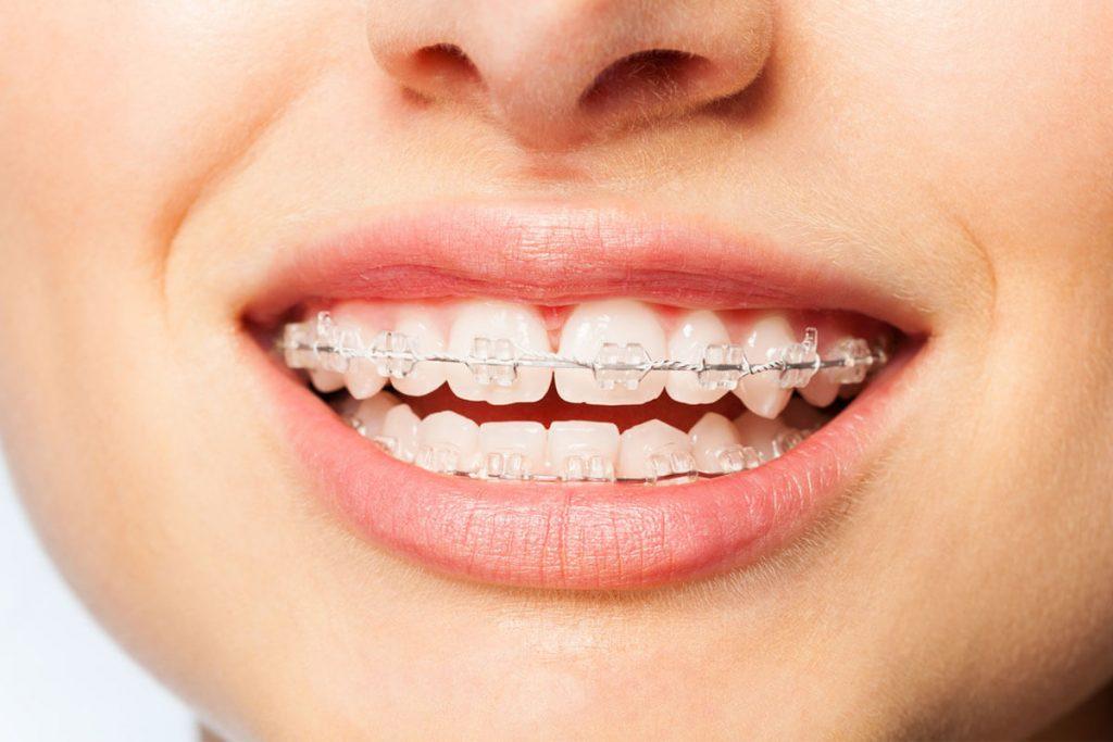 Diş Teli Ağrınızı Azaltacak 10 İpucu